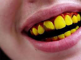 Mengapa Gigi Bisa Berwarna Kuning Dian Yulisa